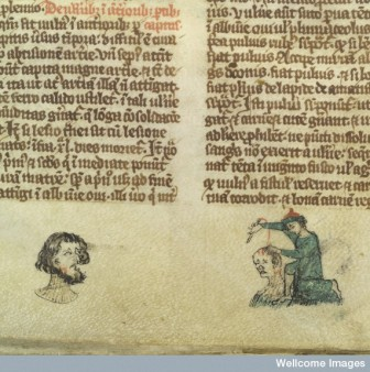 L0037333 Man with cheek wound; surgeon sews head wound, 14th C